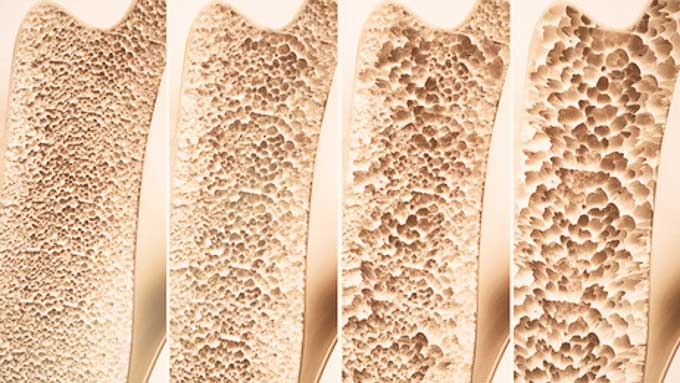 Osteoporose_128463659_XS